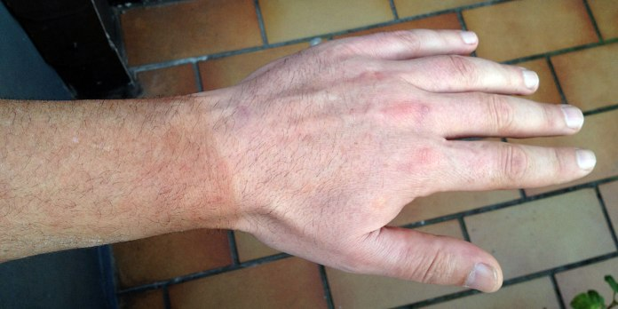 Nach der Ankunft: Was der ganze trübe Sommer nicht geschafft hat, gibt mir dieser eine 28. September – Bräune, deutlich an der Handschuhkante abzulesen.